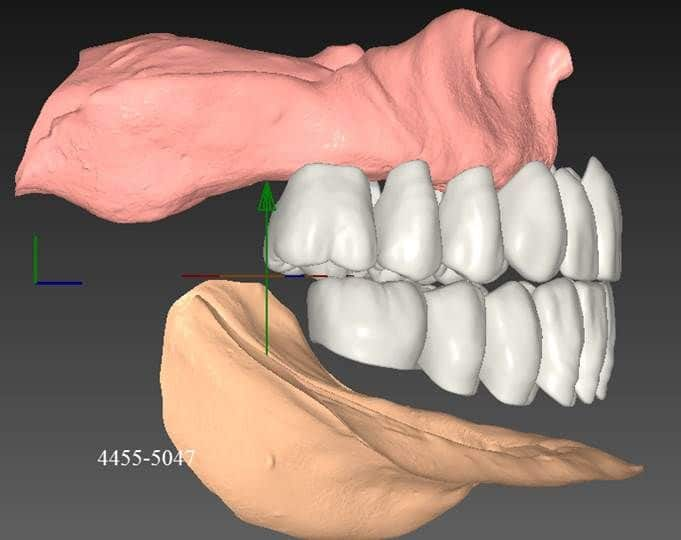 DIGITAL-DENTURE